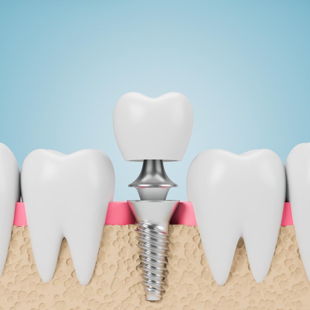 Zahnarzt_Springe_Eppens_Implantologie